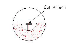 OPCIÓN B (Con bulones)